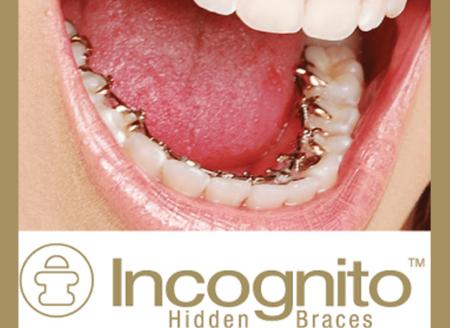 Incognito-Braces Dr Bichra Marrakech Maroc 02.jpeg