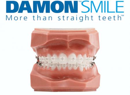 Damon Systeme Maroc Centre Orthodontie Bichra Marrakech 01